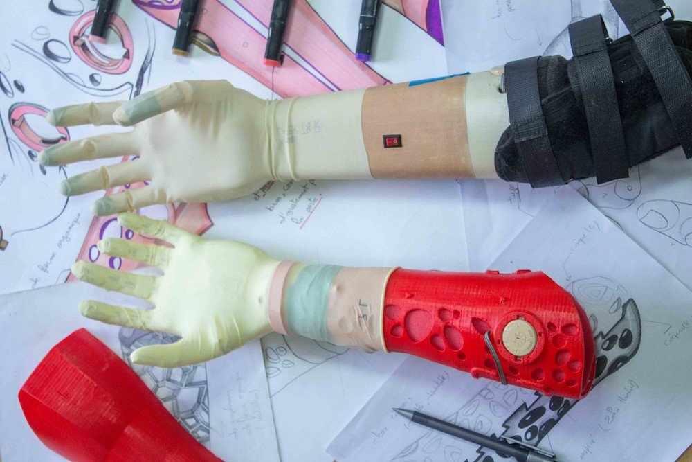 tunisia africa artificial limbs expertise